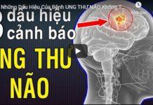 ung thu nao - dau hieu canh bao ung thu nao